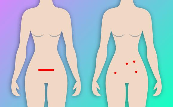 Cirugía Minimamente Invasiva – CMI