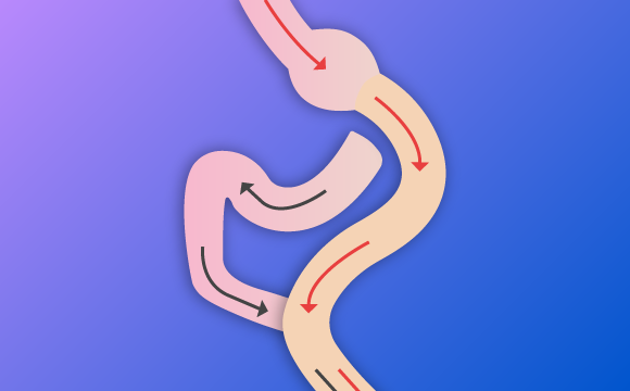 Cirugía de Conversion o Cirugía Revisional