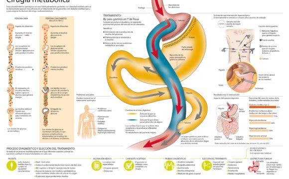 Cirugía metabólica para diabetes: Pese a las recomendaciones, muy pocos pacientes se operan