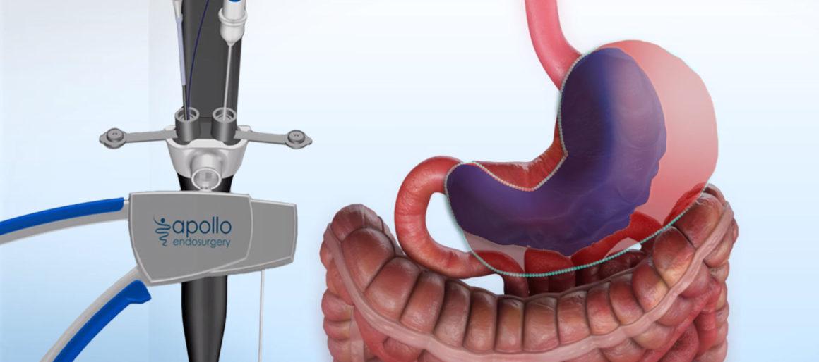 Gastroplastía Endoscópica